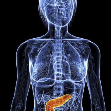 III Enfoque Multidisciplinar Diabetes Tipo 2